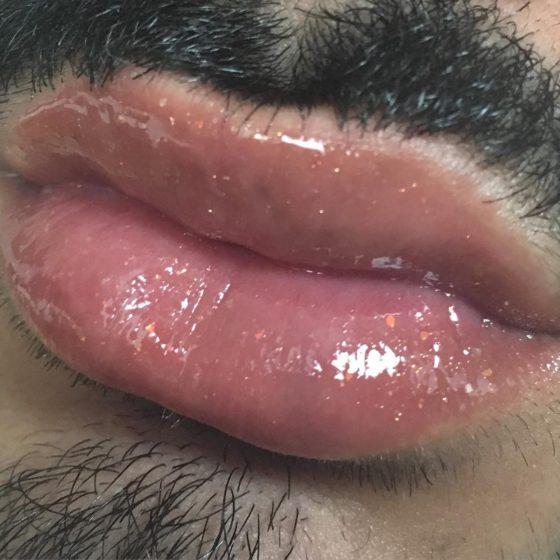 gay lips